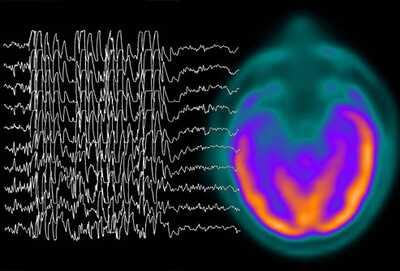 Epilepsy Brain Waves – Photo (c) WebMD.com